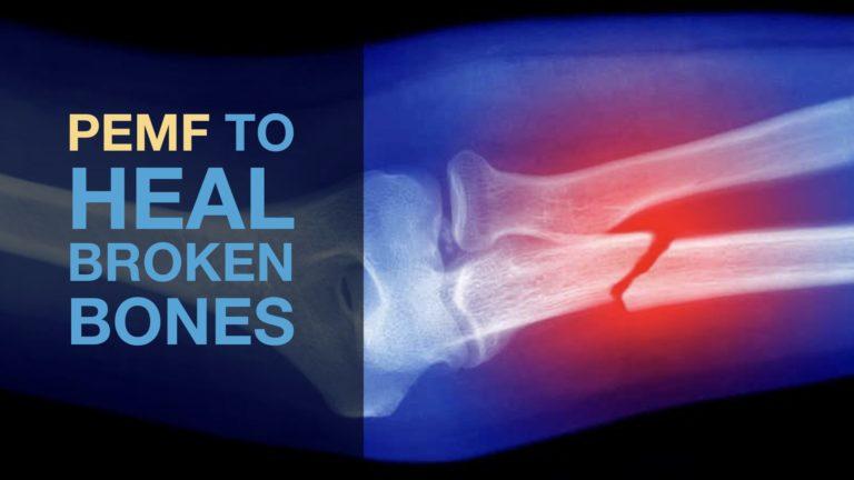 PEMF To Heal Broken Bones
